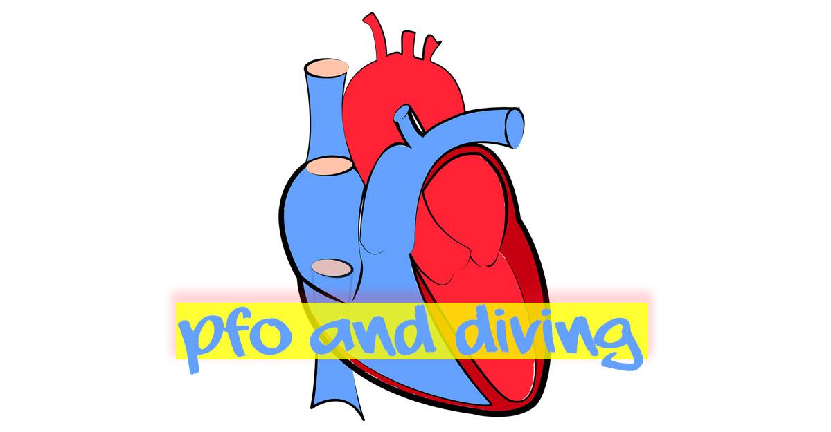 Patent Foramen Ovale scuba diving